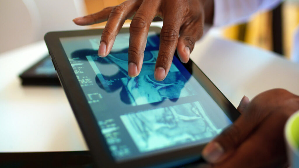 Closeup of doctor looking at xrays and CAT scan on digital tablet.